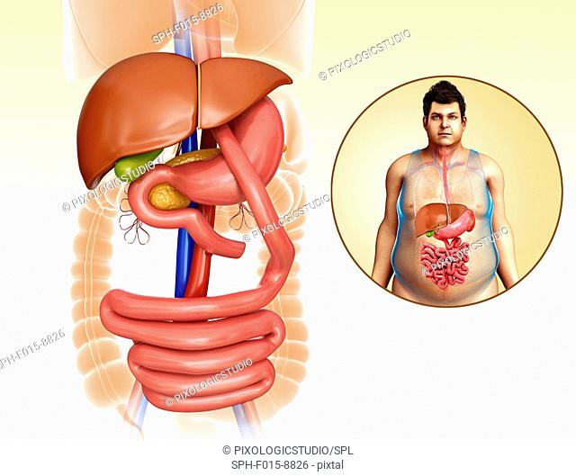 Illustration of gastric bypass