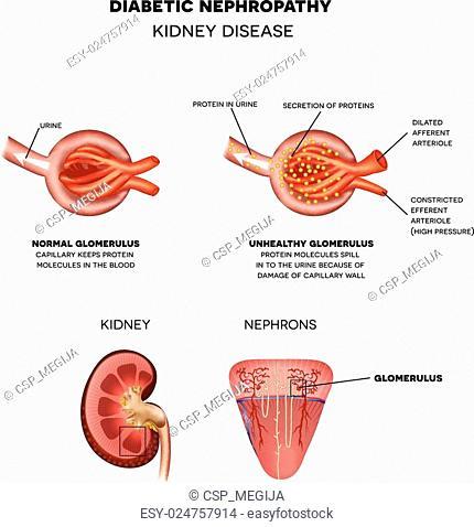 Diabetic Nephropathy, kidney disease