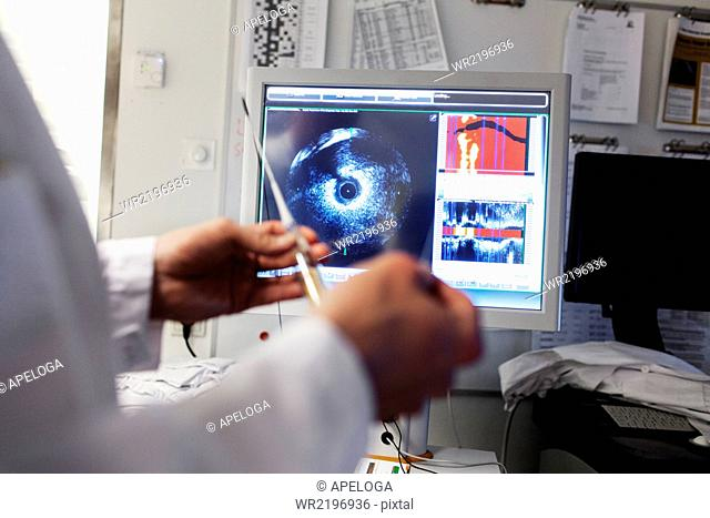 Doctor holding catheter in front of intravascular imaging system