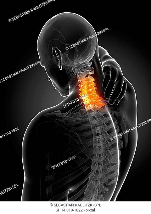 Human neck pain, computer artwork