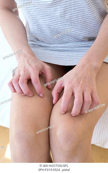 MODEL RELEASED. Woman scratching her legs, close up