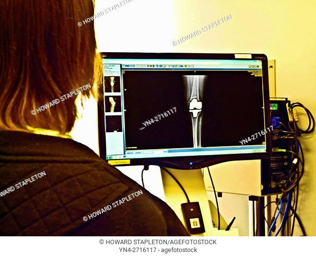 Knee replacement patient looks at X-RAY of her implant 3-monts after surgery