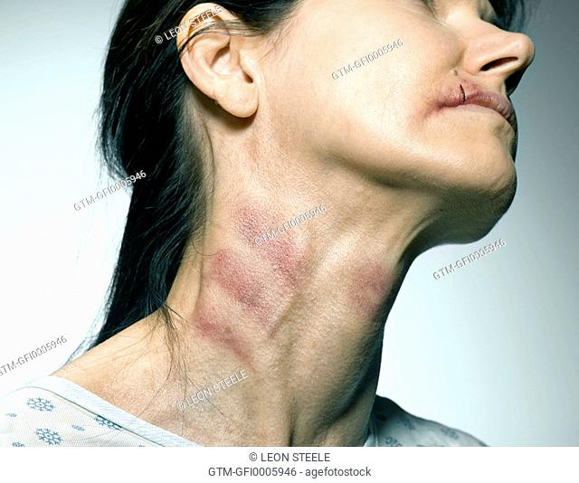 Woman with bruised neck