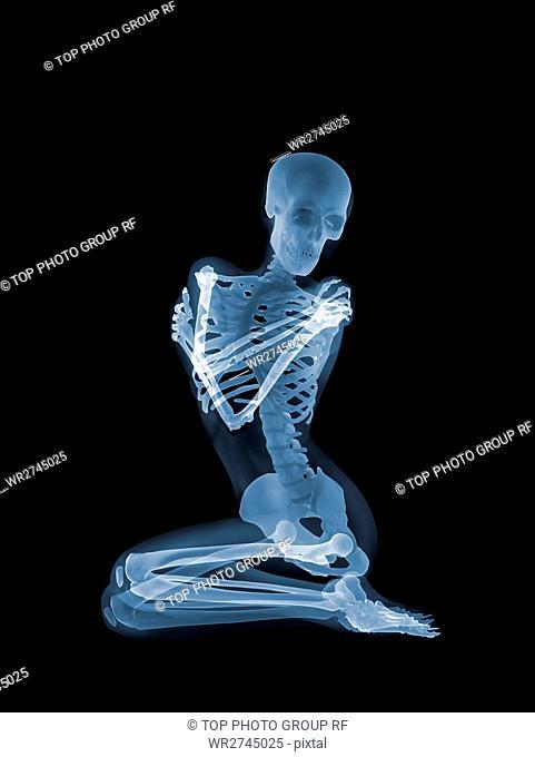 X-ray Concept