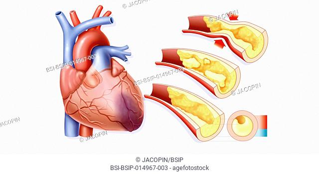 Illustration of the causes of a myocardial infarction, necrosis of part of the secondary heart muscle through an oxygenation flaw (ischemia)