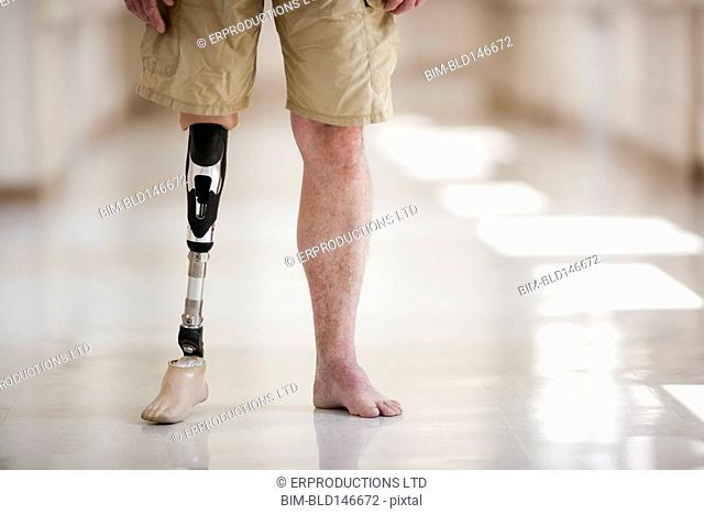 Patient with artificial leg standing in hospital corridor