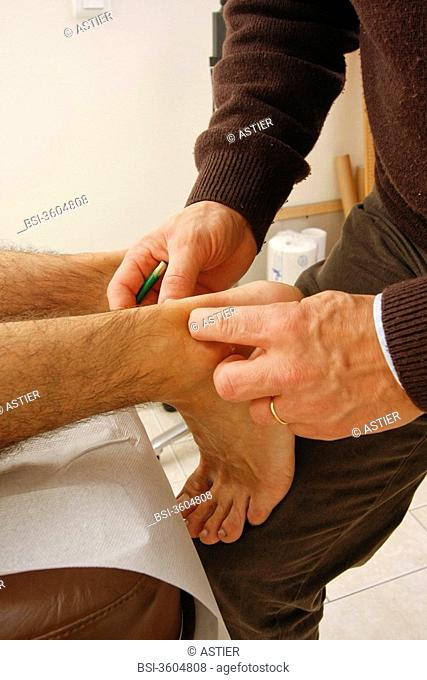 Photo essay from doctor's office. Merville, France. Systematize Punctual Mesotherapy MPS following Achille's tendon pains