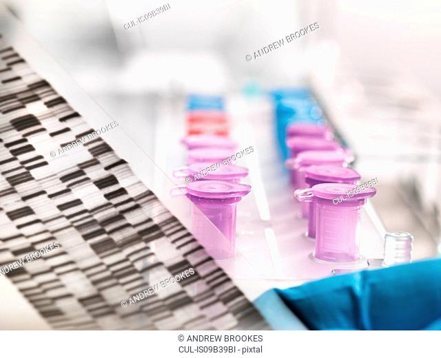 Scientist holding a DNA autoradiogram gel showing genetic information with samples in tray
