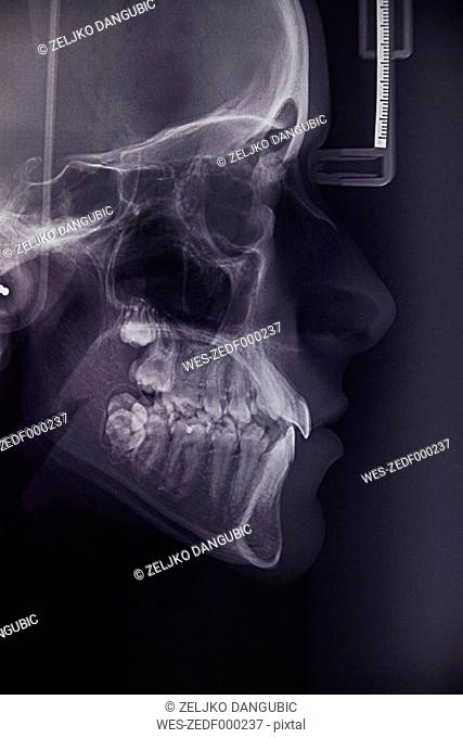 X ray image of young woman's teeth