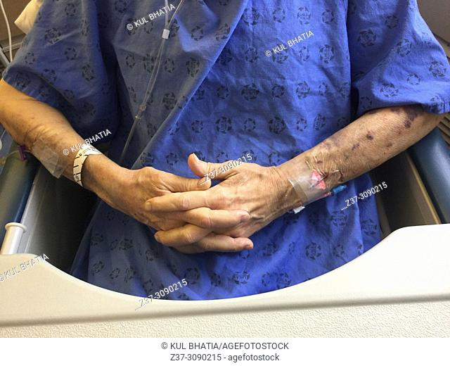 An elderly man with multiple IVs in his arms, keeps his fingers crossed in a hospital setting, Ontario, Canada