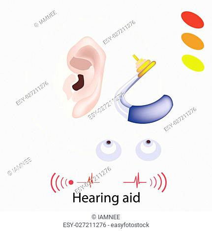 Illustration of Hearing Aid or Deaf Aid, A Device Which Amplifies Sound for The Wearer to Hear Better