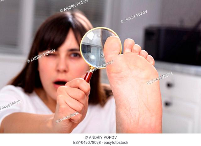 Shocked Young Woman Looking At Her Toe Nails With Magnifying Glass