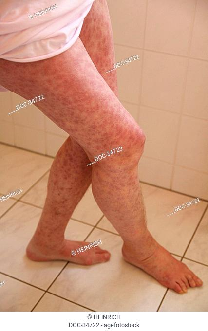 legs of a woman having a rash caused by penicillin