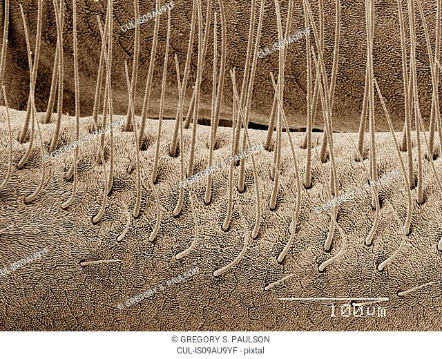 Coloured SEM of antenna of sand fly (Ceratopogonidae)