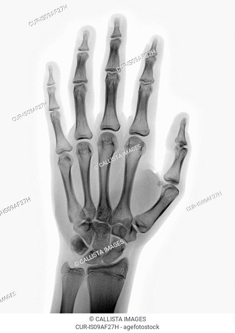 normal hand x-ray of a 15 year old boy