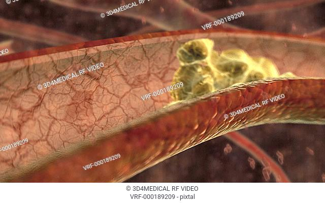 Animation depicting red and white blood cells flowing through a blood vessel with cholesterol built up on the walls, causing a blood flow problem