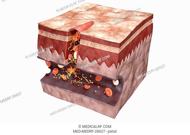 Blood clot formation
