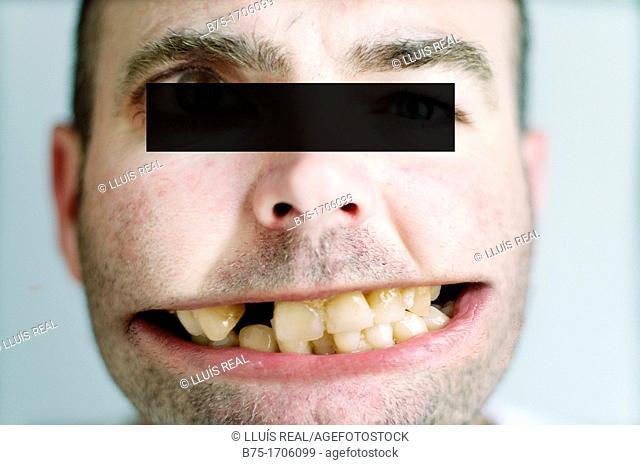 cara de hombre irreconocible con ojos tapados, unrecognizable face with blindfolded man