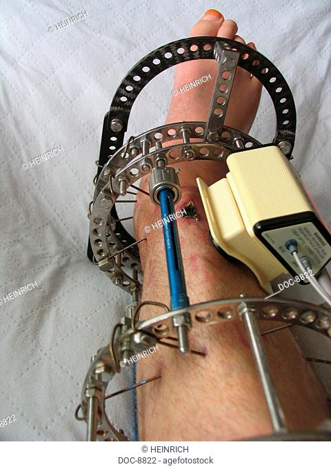 A lower leg to open debris break with Osteitis - bone inflammation - is extended with Ilizarov - technique - ultrasonic processing to the stimulate the bone...