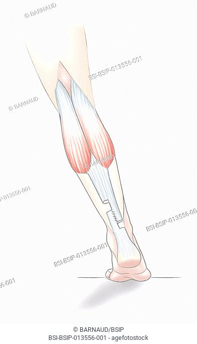 A technique for lengthening the Achille's tendon