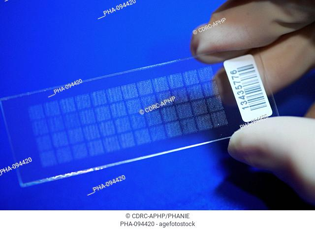 DNA chip containing the genome of an obese person. Research team of Pr Katrine Clément on nutrition and health, INSERM U872, Cordeliers Research Center
