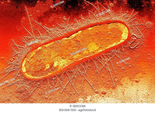 Escherichia coli E. coli is harbored naturally in the human gut, comprising 80 of the anerobic flora. This rod shaped bacteria has the characteristic shape of...