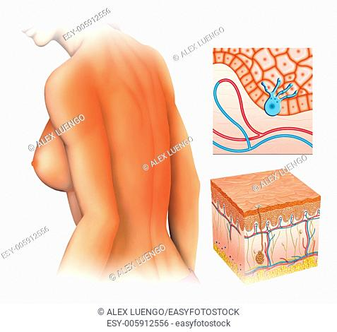 illustration of a woman with burn back a long time caused by sunlight exposure