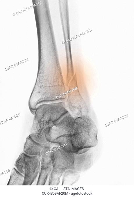 x-ray of a fracture of the distal fibula