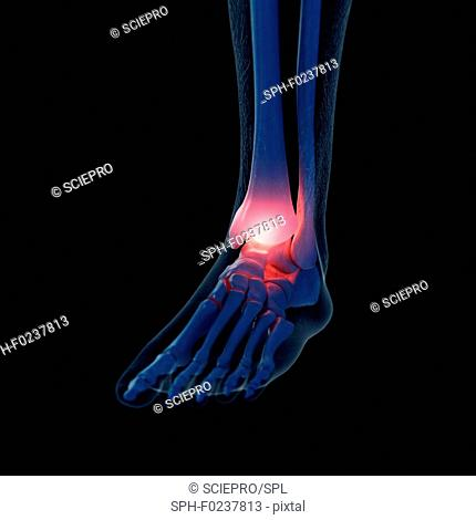 Illustration of a painful ankle