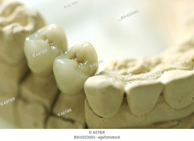 DENTAL PROSTHESIS<BR>Photo essay from hospital.<BR>University regional medical center at Lille, in the  Nord-Pas-de-Calais region of France