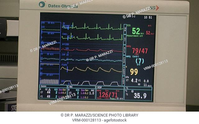 Hospital monitor being used during a hepatectomy (surgery involving the removal of liver tissue) to monitor the patient's vital signs