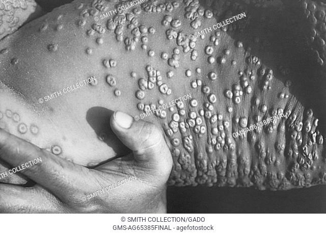 This image depicts numbers of smallpox skin lesions on torso of a 1973 patient in Bangladesh. Image courtesy CDC/James Hicks, 1973
