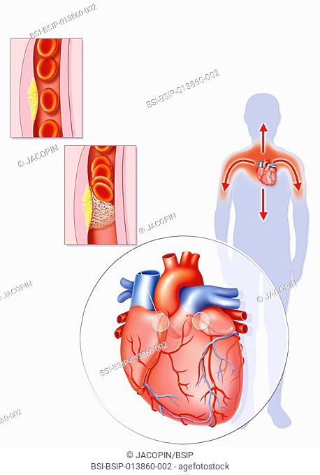 Illustration of the stages of formation and setting off of a myocardial infarction, or heart attack. an artherosclerotic plaque forms in the lining of coronary...
