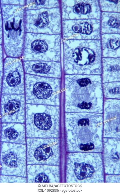 Mitosis  Root of onion