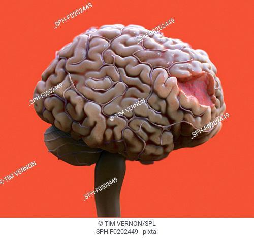 Brain damage, illustration