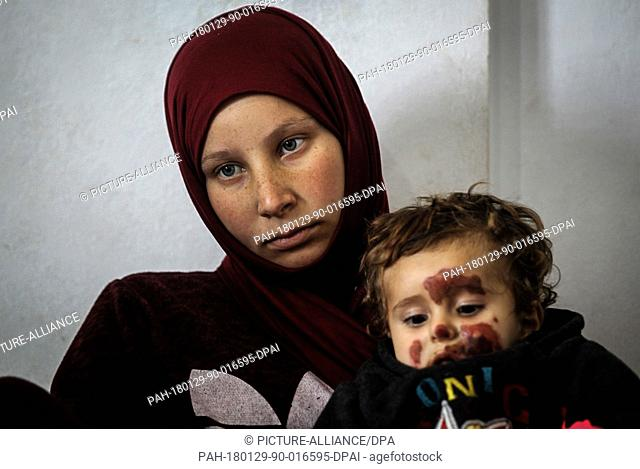 dpatop - A picture made available on 29 January 2018 shows Bashaer (R), a one-year-old Syrian refugee, who suffers from ice burns