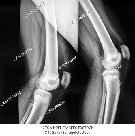 X-ray ofthe knees