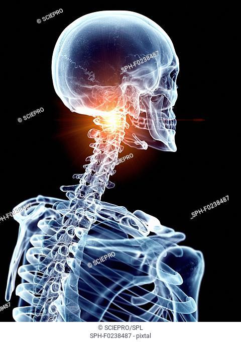 Illustration of a painful cervical spine