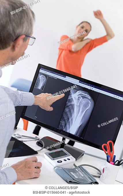 Digital x-ray of the left shoulder