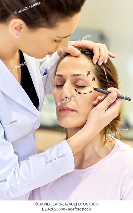 Facelift. Blepharoplasty. Rhytidoplasty. It involves stretching the facial skin in order to remove wrinkles. Before surgery it is necessary to mark the facial...