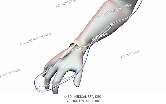 Animation depicting an intravenous bolus injection setup. The camera rotates clockwise while zooming in on the hand