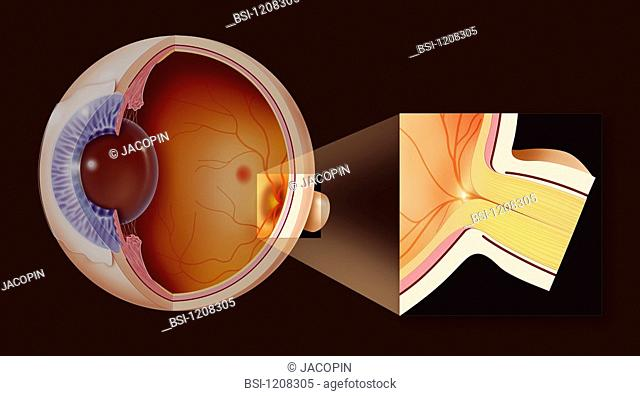 EYE, DRAWING<BR>Illustration of a healthy eye. Cross-section with close-up of the blind spot and the optic nerve