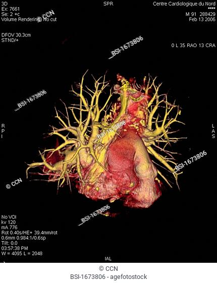 Angiography scanner 3D. Visualization of the heart, vena cava superior and pulmonary vascularization arteries and arterioles, veins and pulmonary venules